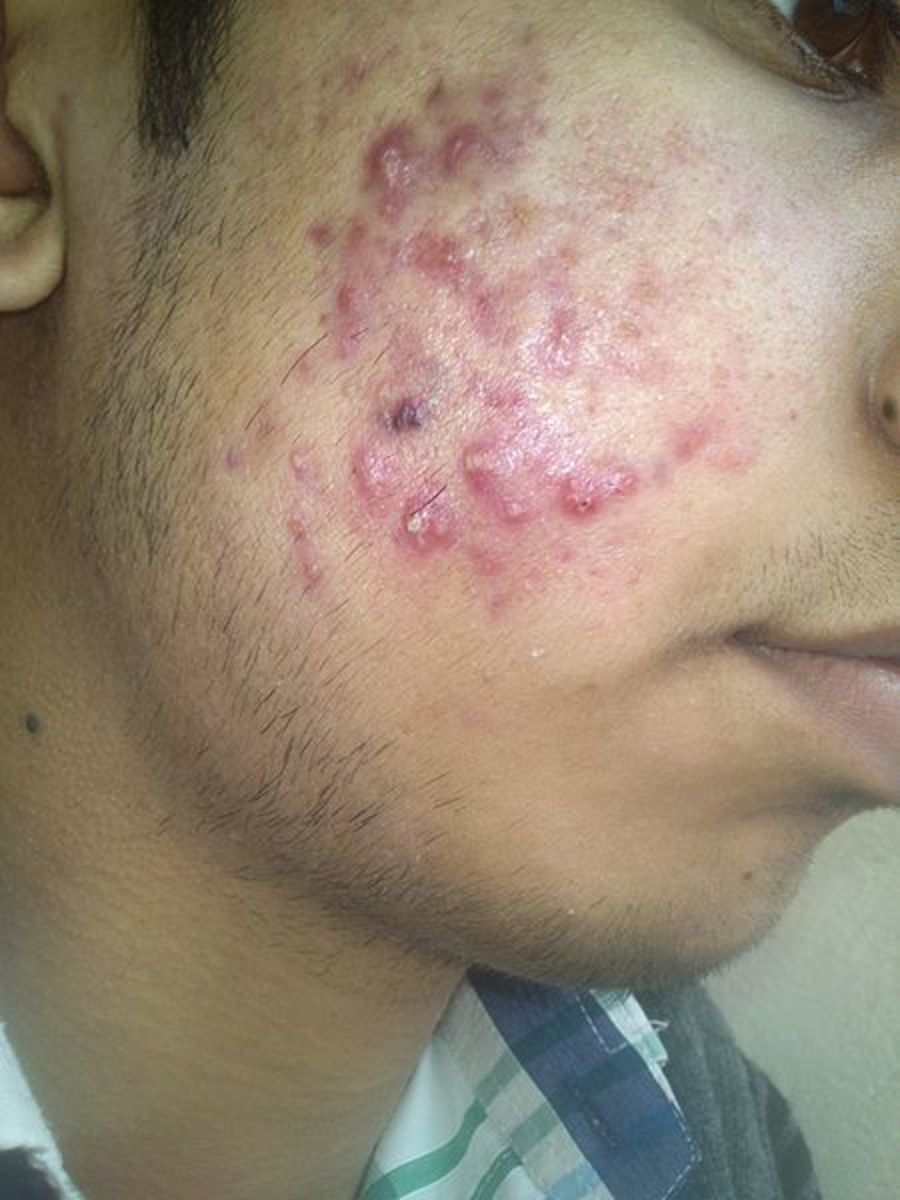 Severe acne on the face, resulting in papules and pustules on the cheeks.