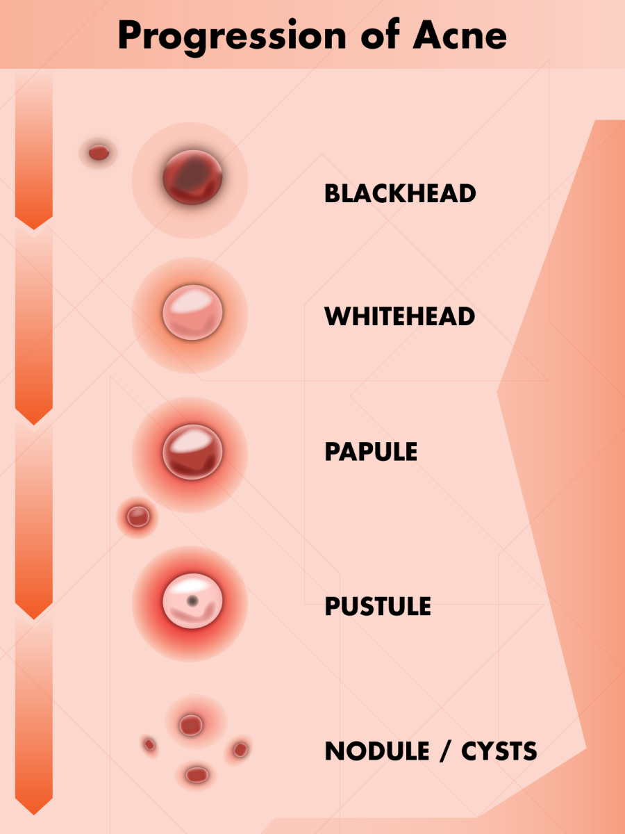 Types of Pimples: How Acne Progresses