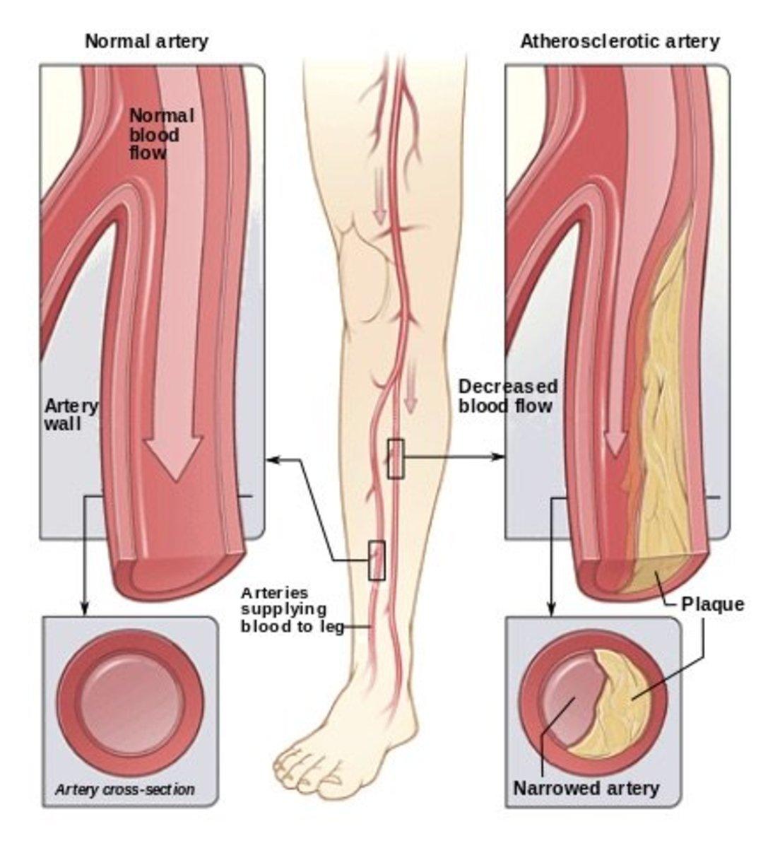 Peripheral artery, arterial or vascular disease