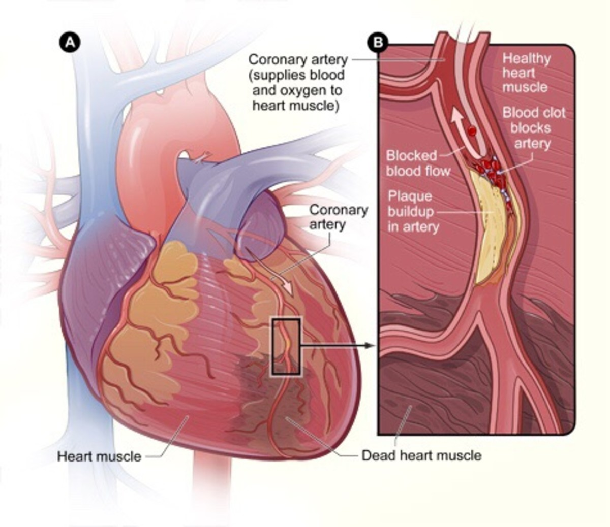 Excess LDL cholesterol may cause plaque and a blood clot in a coronary artery.