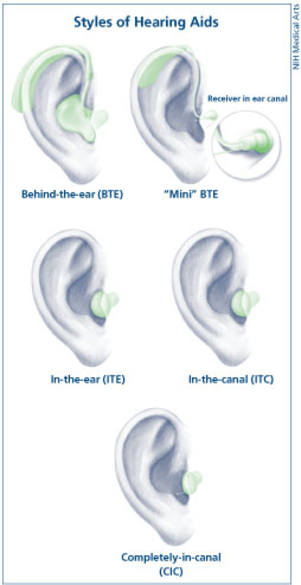 Styles of Hearing Aids by Erth64net, Wikimedia Commons