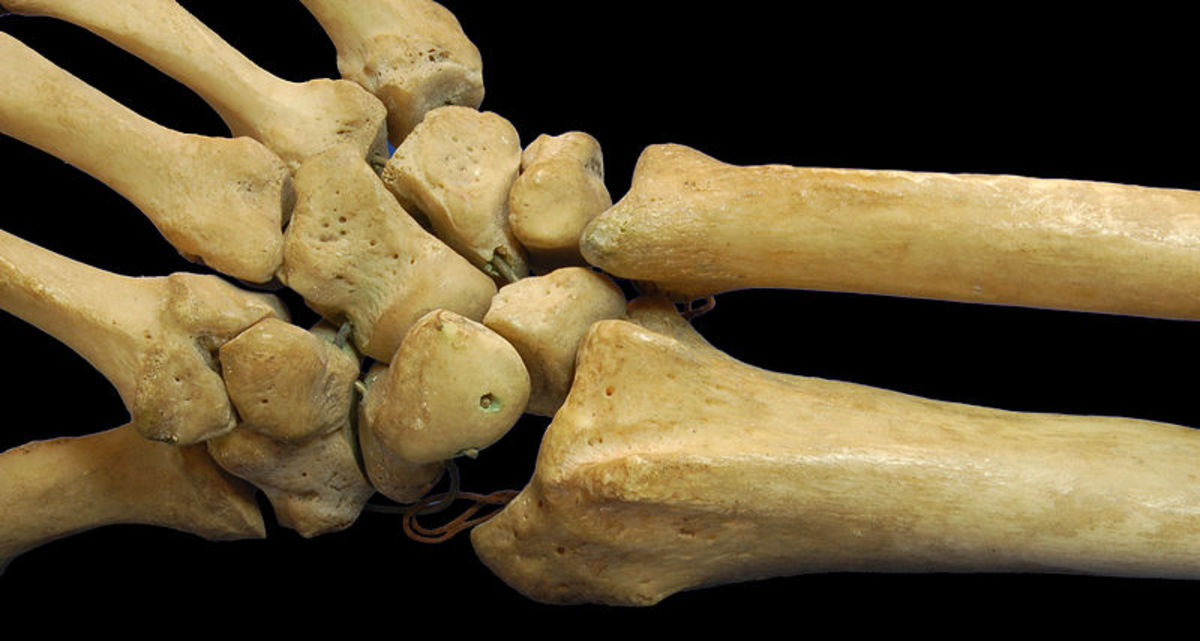 Broken Bones | Broken Wrists Recovery | How long does it take to heal?