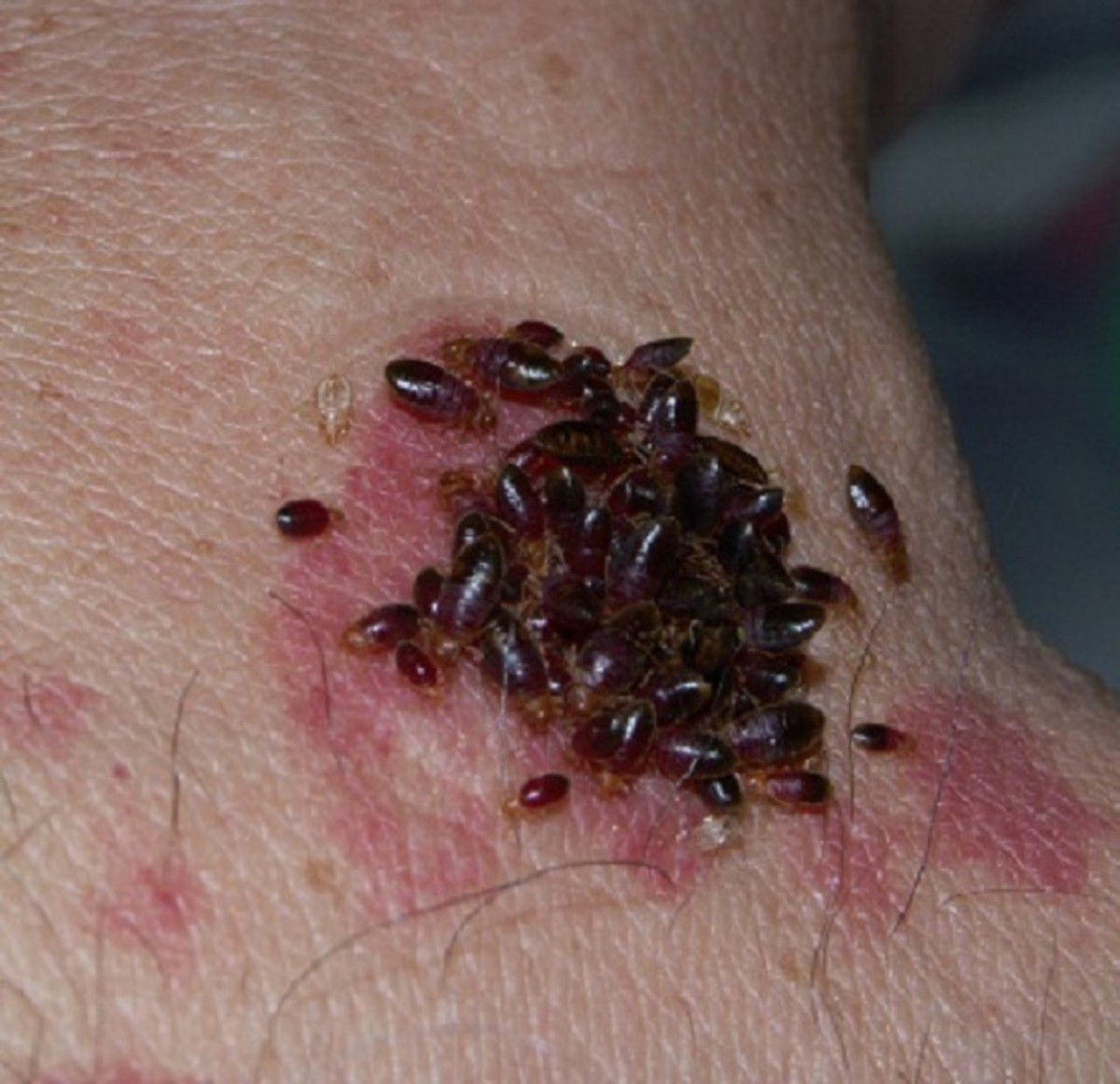 Yes, those are bed bugs; and yes, that's a human that they are biting.