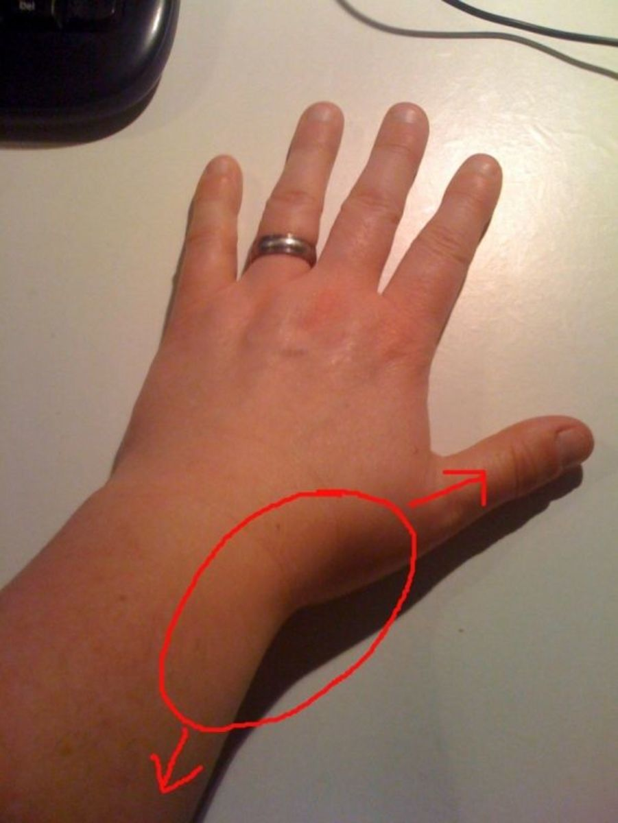 My Experience With Thumb and Wrist Pain (Includes Exercises)