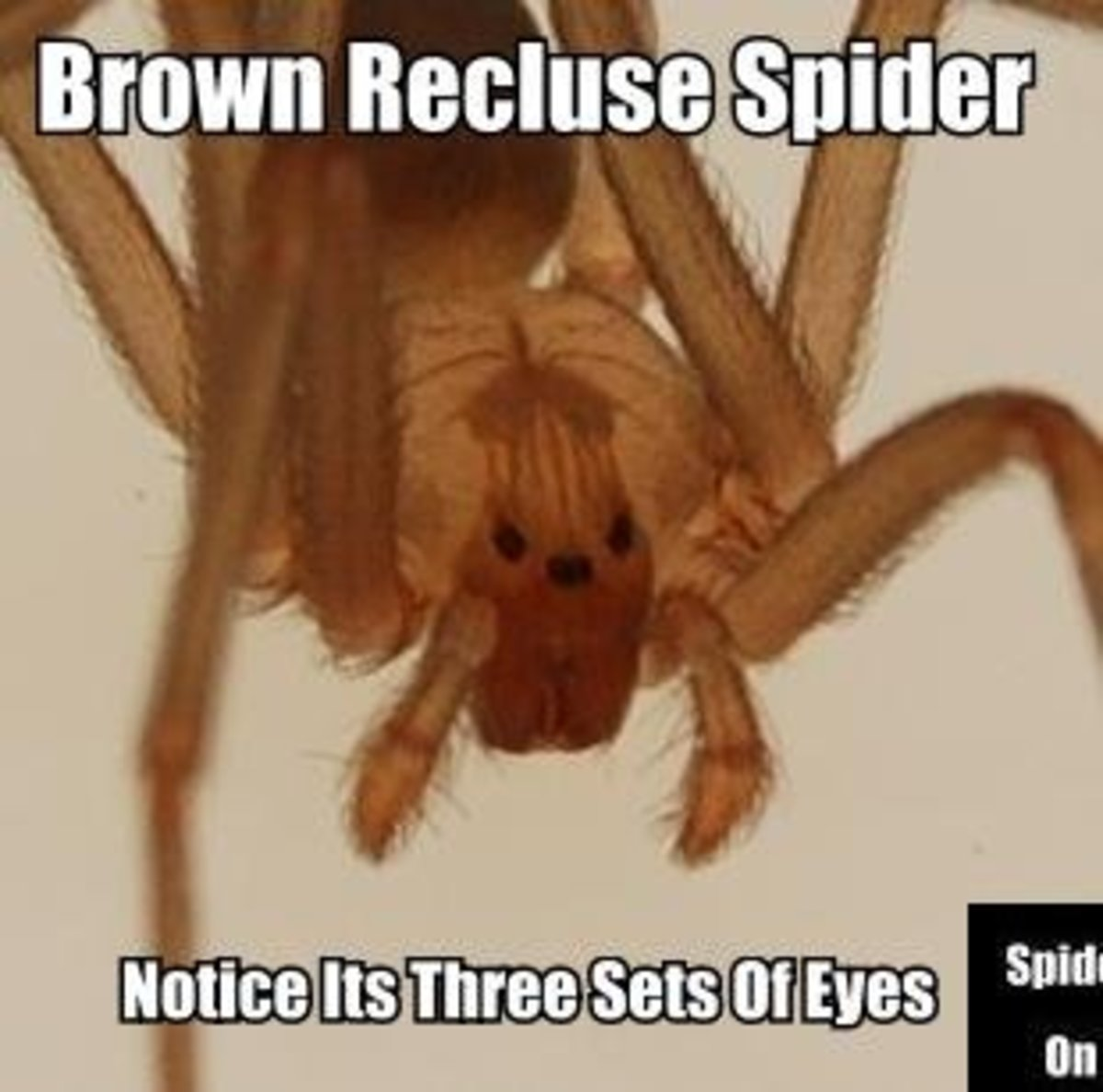 In this photo notice the three distinct sets of eyes of a Brown Recluse Spider.