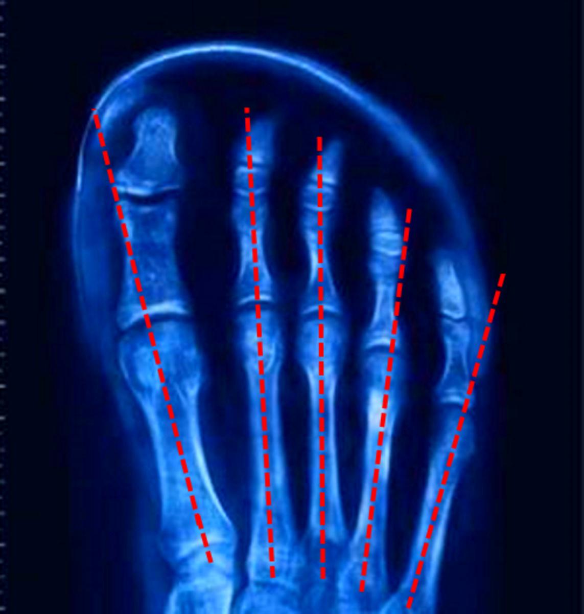 fan shaped bones just like in the hand