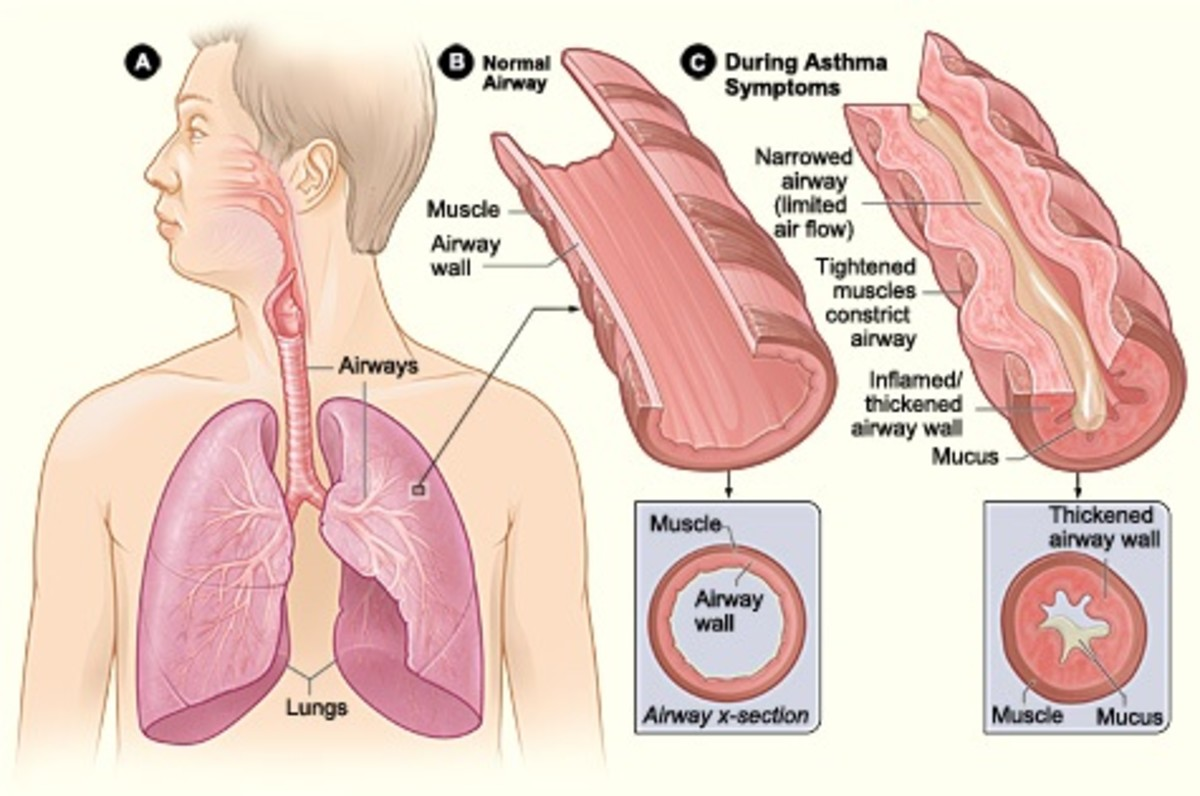 During an asthma attack, airways narrow and fill with mucus. Mold spores are a common trigger for asthma. Aspergillus in the airways can make asthma worse.
