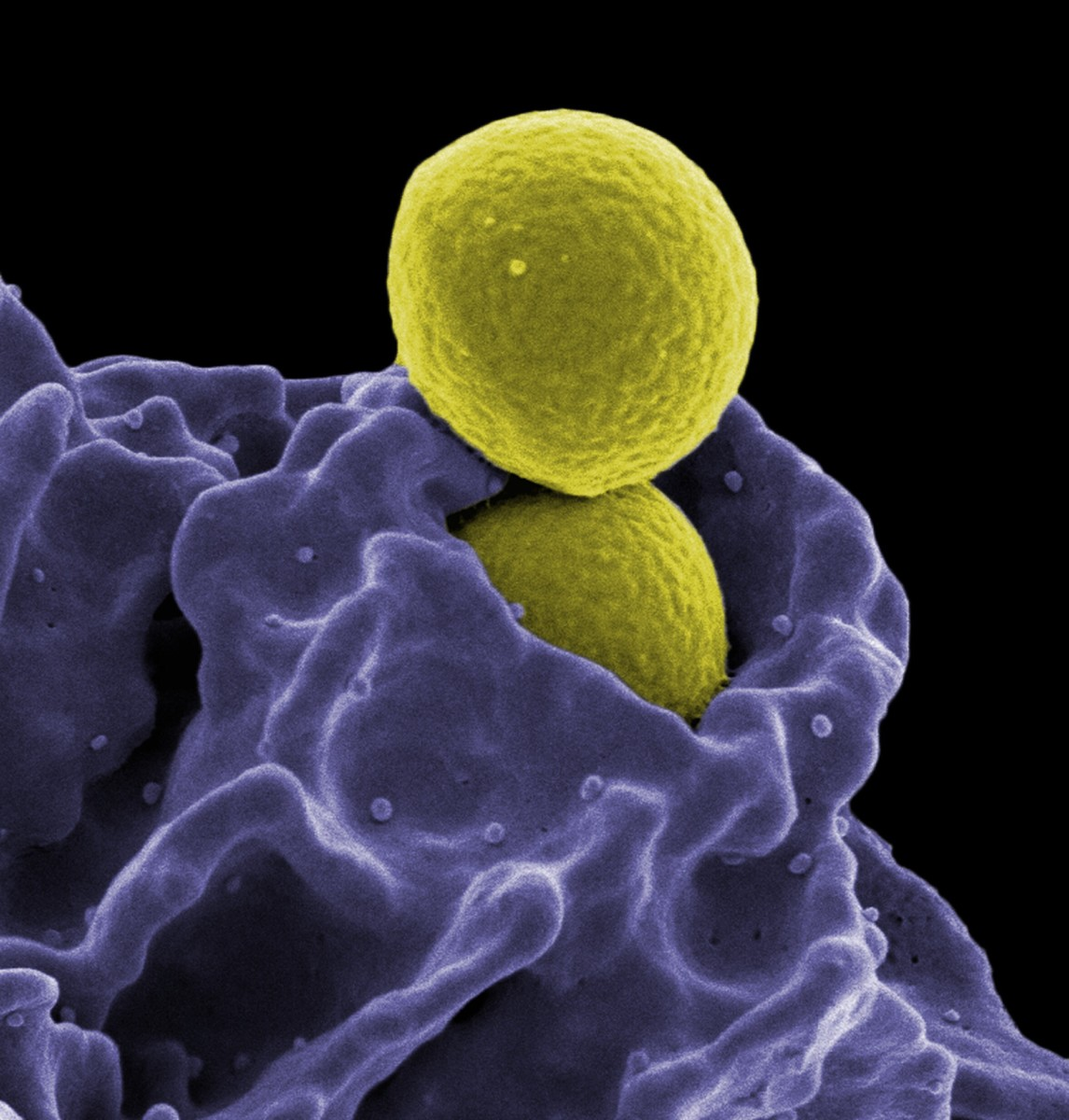 Neutrophils protect us from fungal spores and bacteria. In this photo a neutrophil is ingesting an MRSA bacterium. Both the neutrophil and the bacteria are colorized.