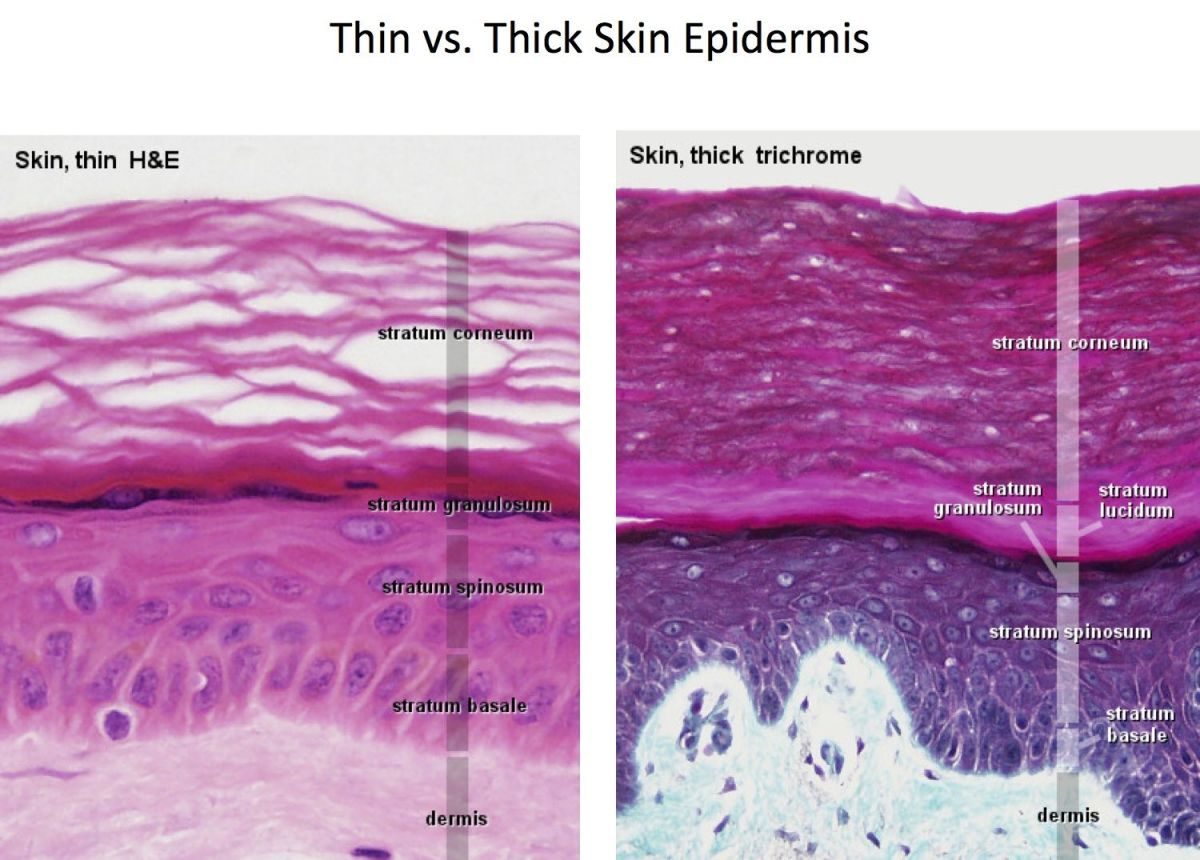 #thinskin  #epidermis