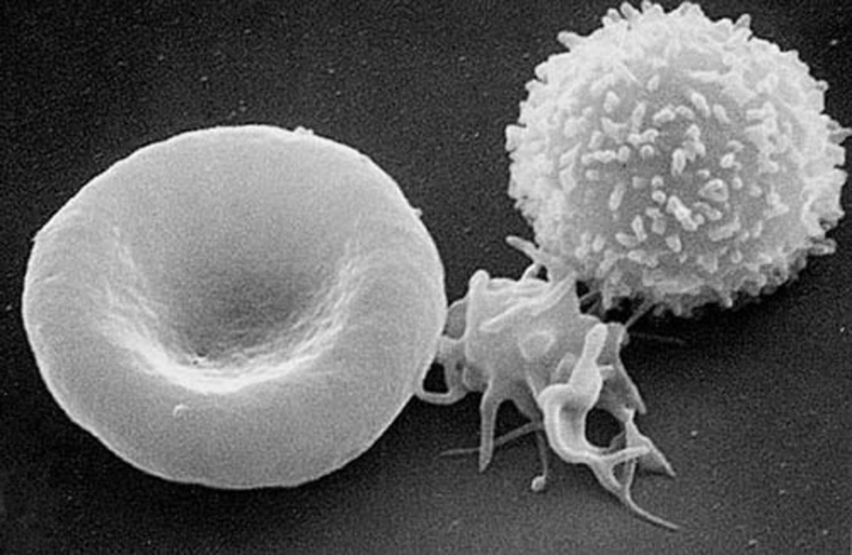 A photo of blood cells made with a scanning electron microscope; the red blood cell is on the left, an activated platelet is in the middle and one type of white blood cell is on the right