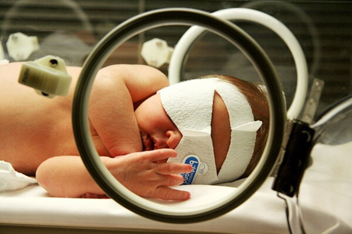 Jaundice phototherapy for a baby