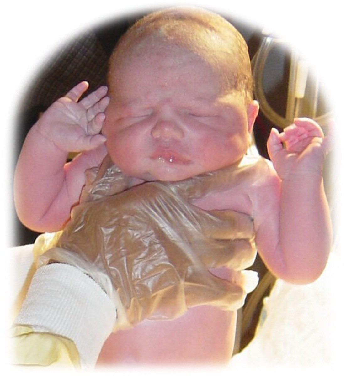 All newborn babies should be monitored for signs of jaundice