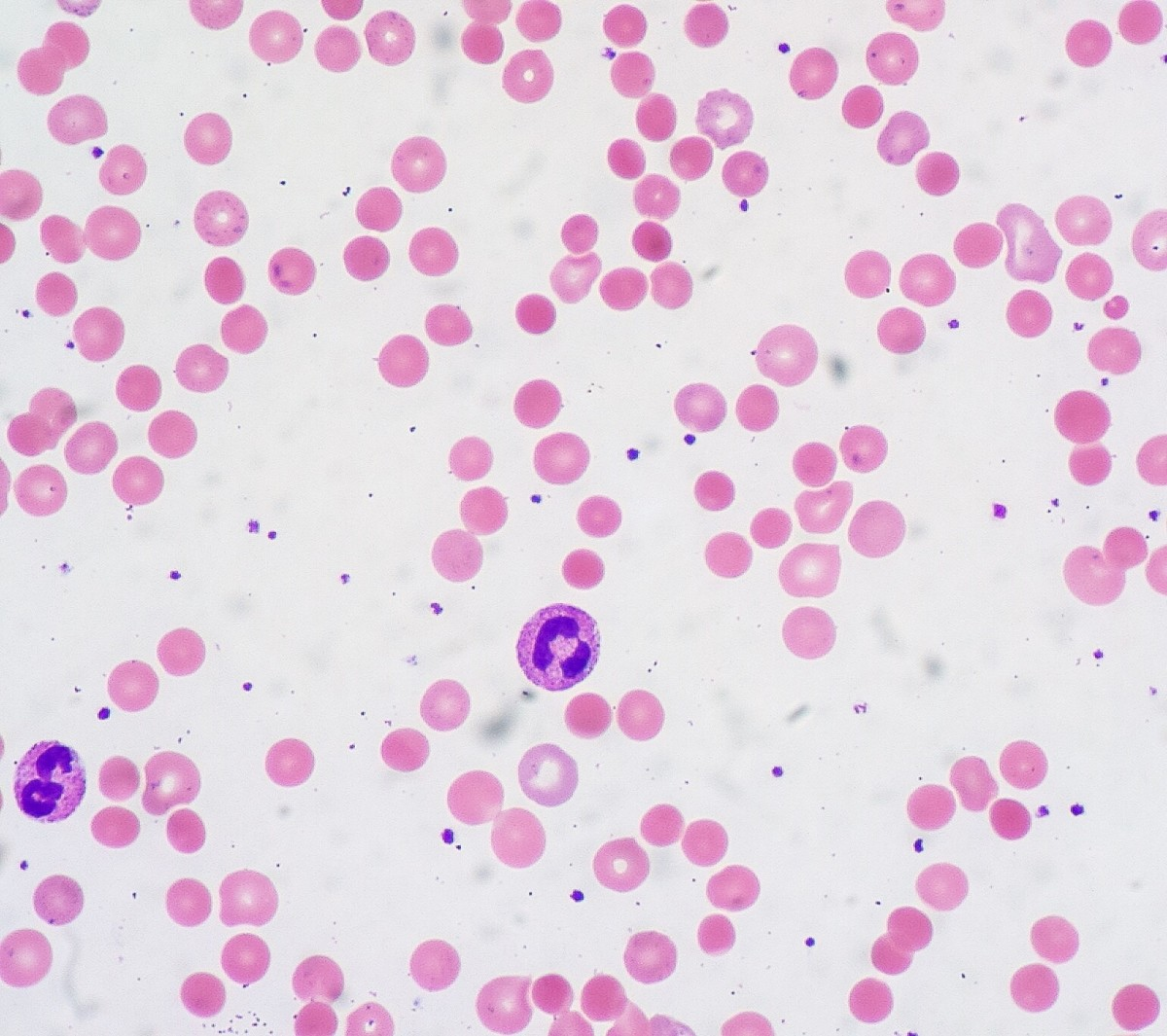 Red blood cells in autoimmune hemolytic anemia
