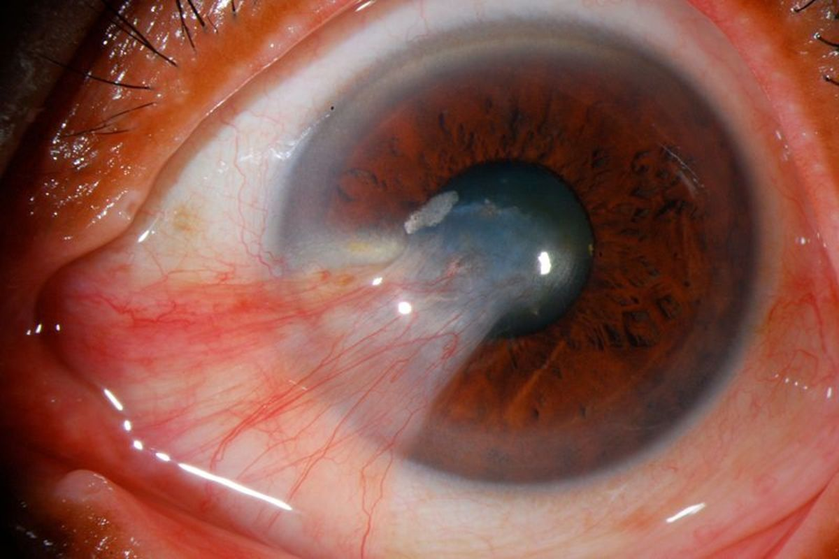 Left unchecked, a pinguecula can cross into the colored portion of the eye and interfere with vision. This condition is called pterygium, as shown in this severe case.