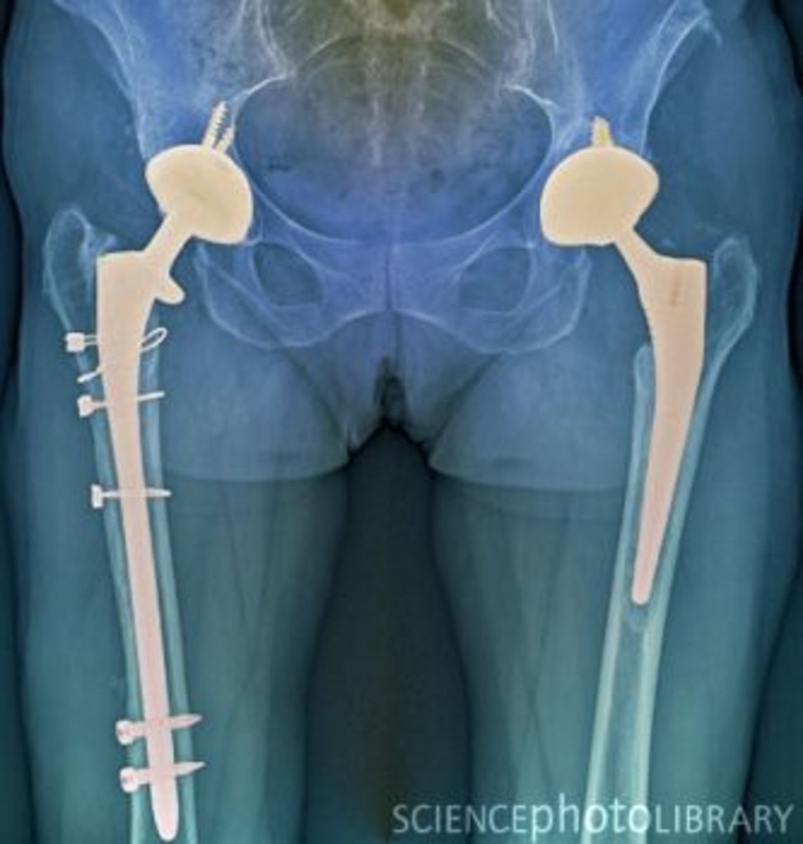 Double hip replacement post-op X-ray