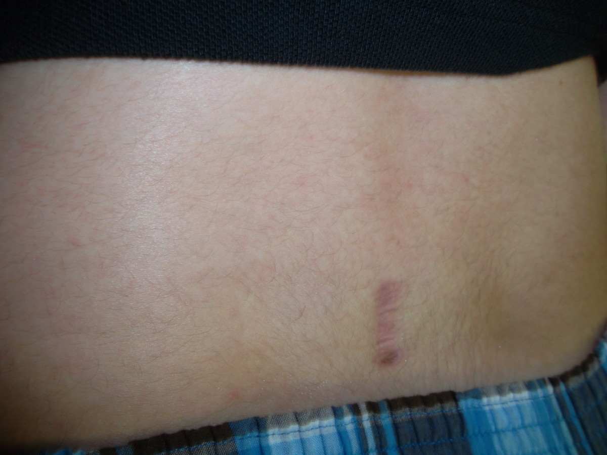This is my son's scar four months after surgery