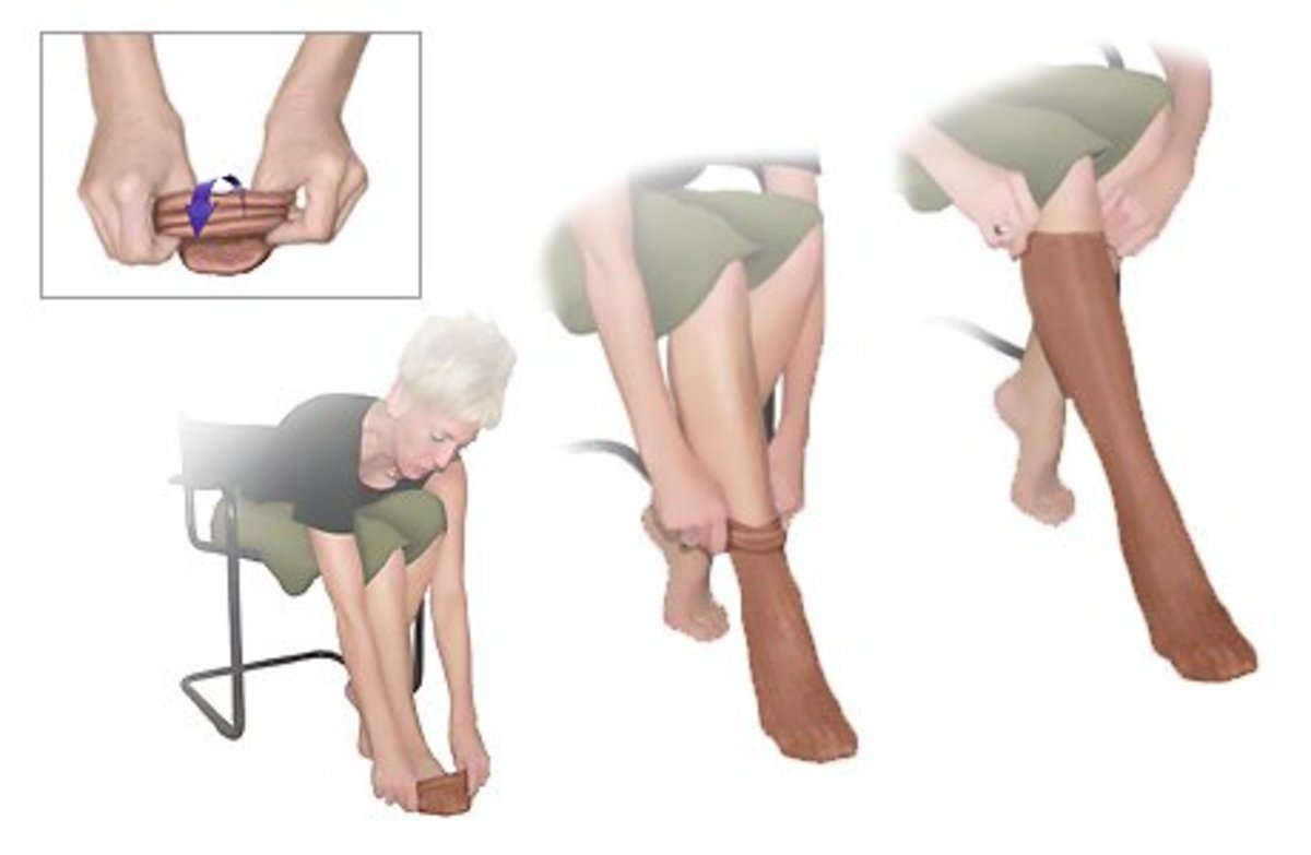 leg-swelling-in-the-elderly-causes-and-treatment