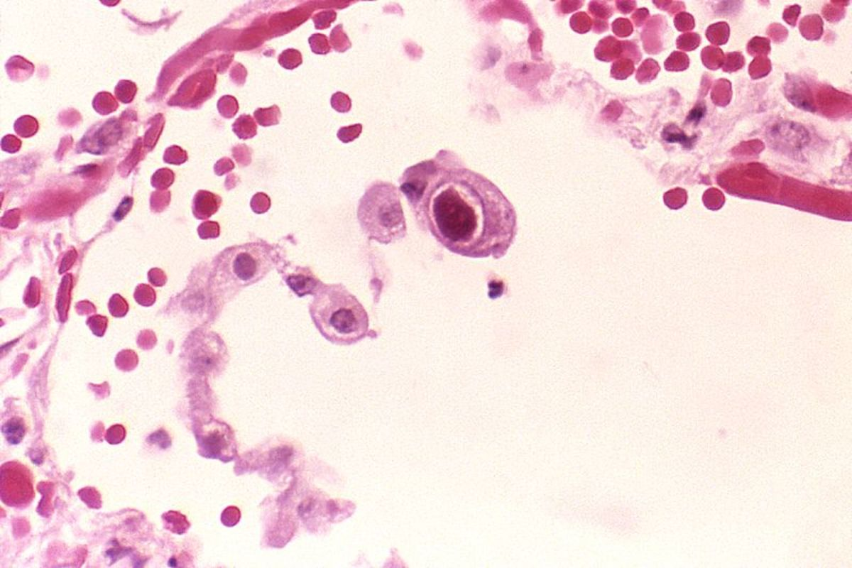 The central cell shows the enlarged nucleus that is characteristic of the CMV virus.