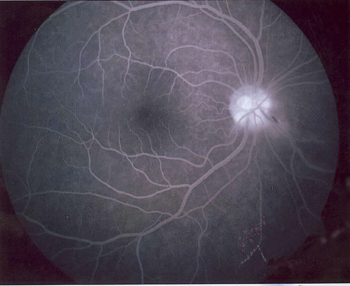 Angiography - black and white image of retina