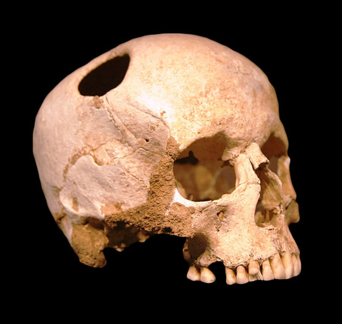 The skull of a female who survived the trepanning procedure.