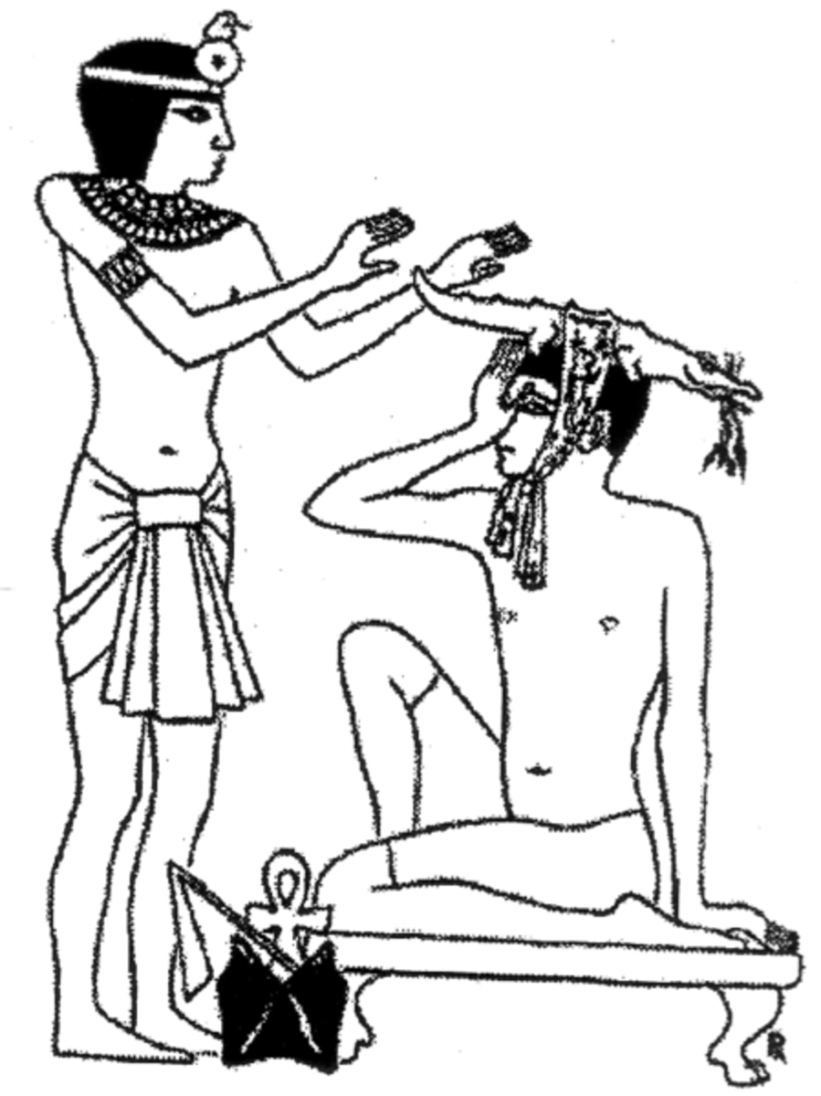 Egyptian papyrus drawing of a patient with a headache.