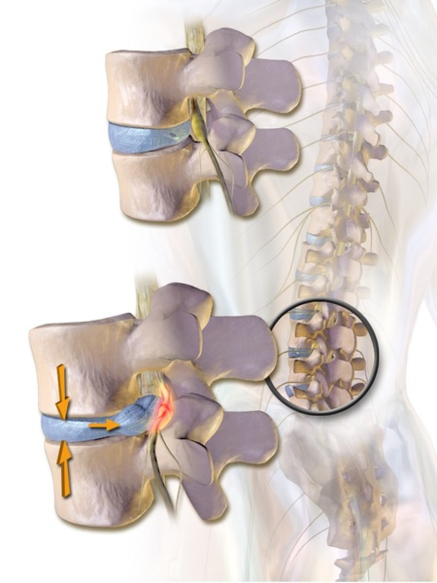 A herniated disk in a lumbar vertebra as viewed from the side