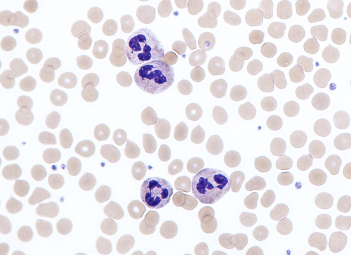 Neutrophils are a type of white blood cell and fight infections. The number of neutrophils in the appendix increases significantly during appendicitis. The purple lobed structure inside each stained neutrophil in this photo is the nucleus.