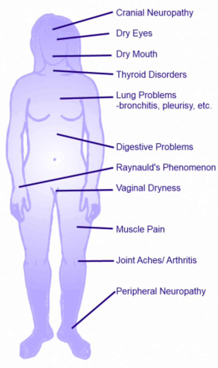 What is Sjogren's Syndrome? How To Tell If You Might Have ...