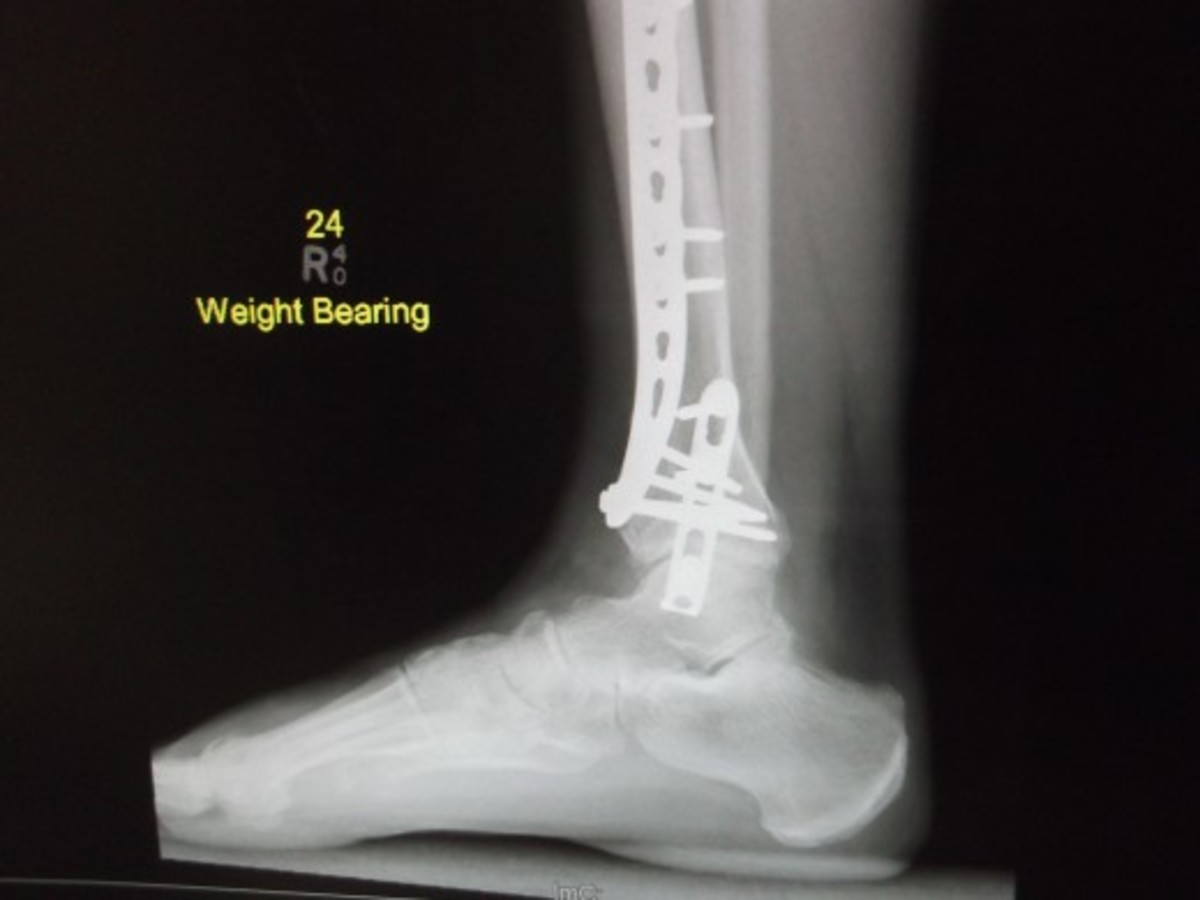 Repairing my husband's broken ankle was much more complicated than if it had been a sprain.