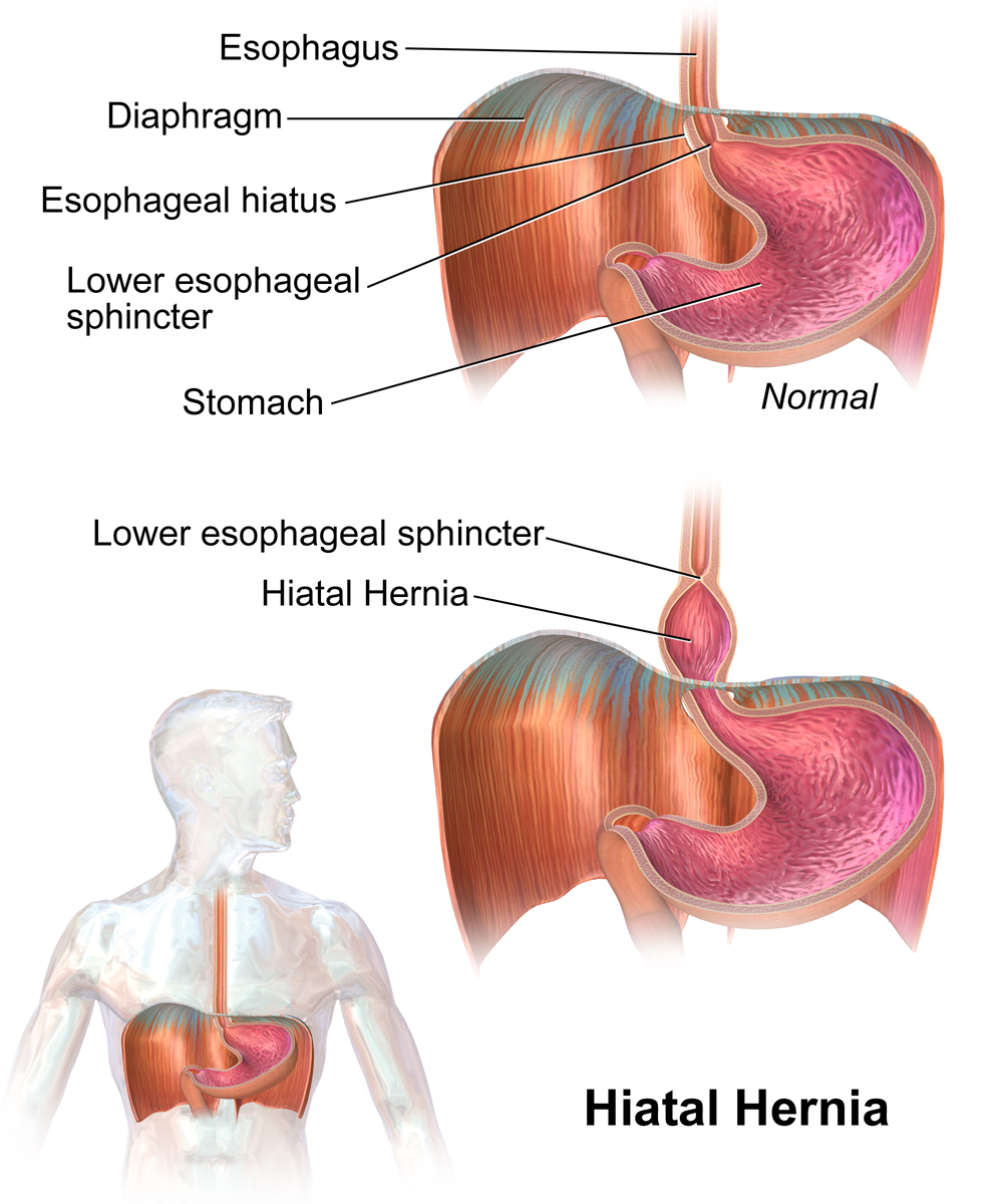 Hiatal hernias make acid reflux more likely.