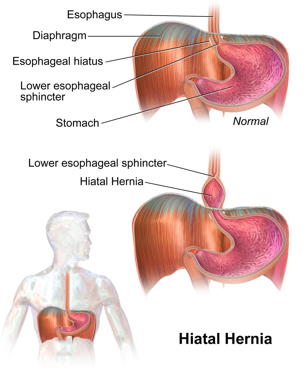 Hiatal hernias make acid reflux more likely.
