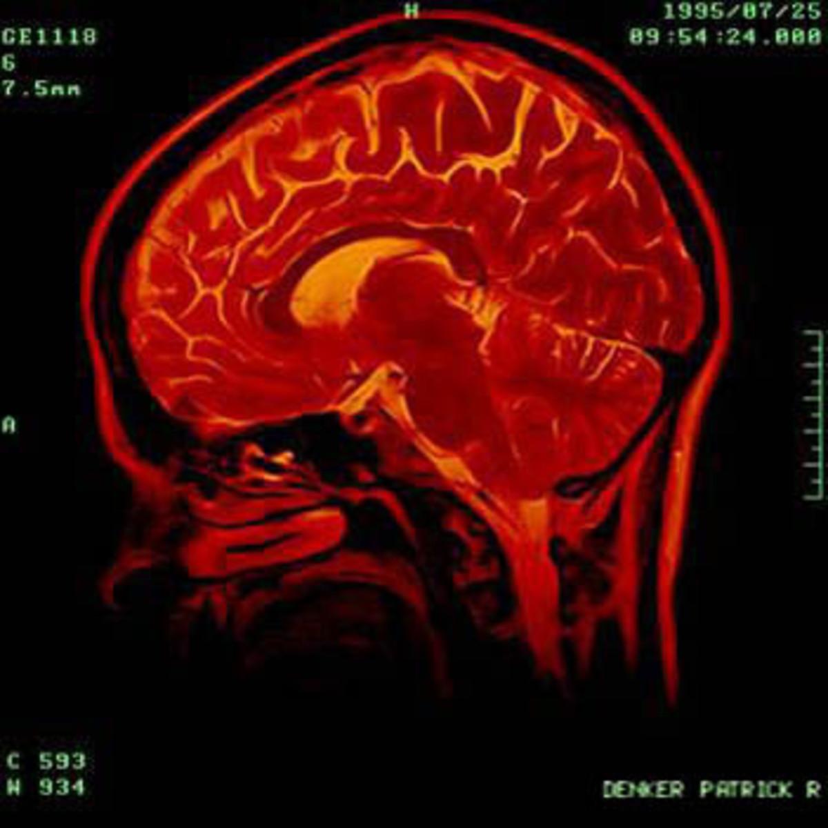 Inside a Psychopath's Brain
