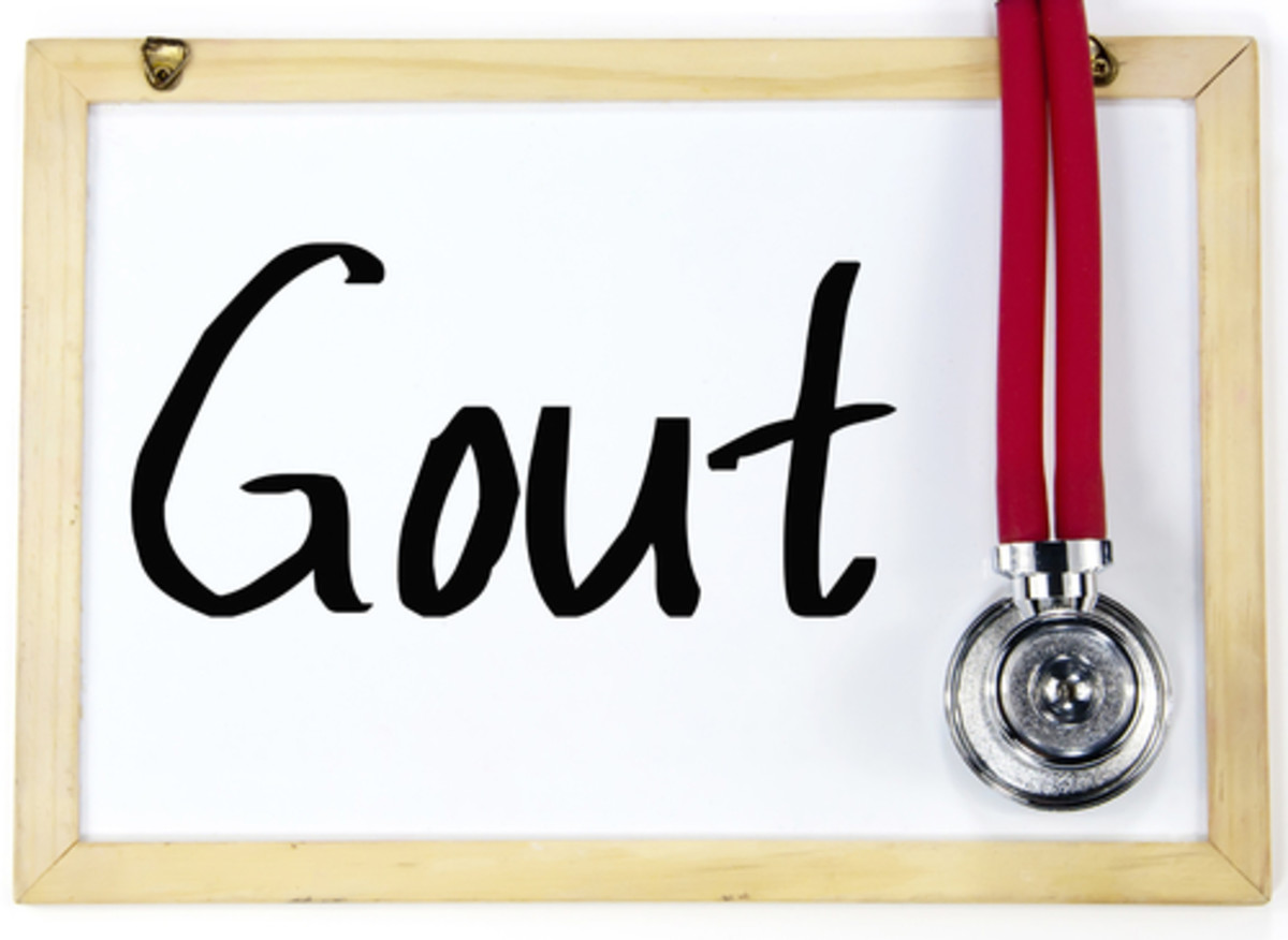 Complications of Gout