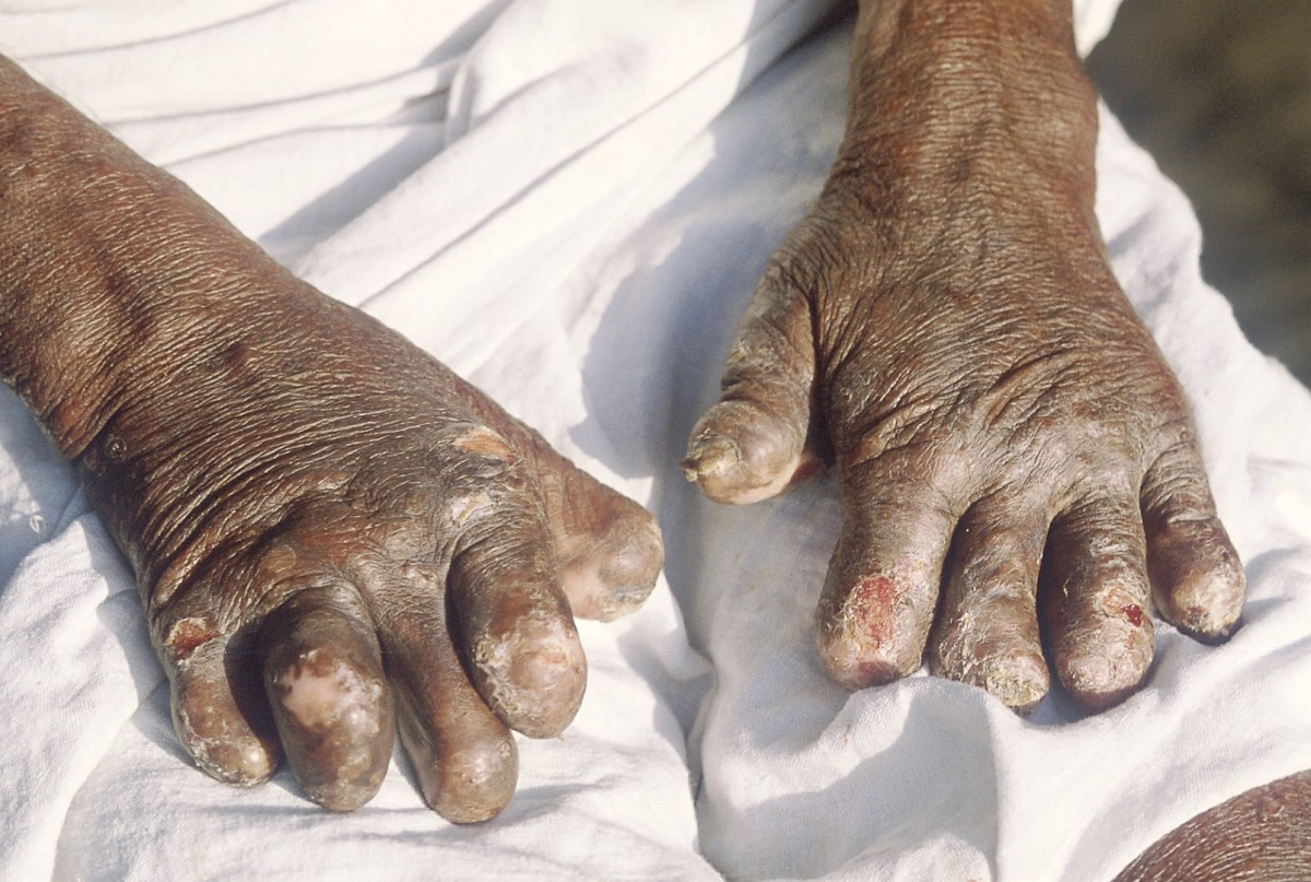 Partial reabsorption of fingers in leprosy