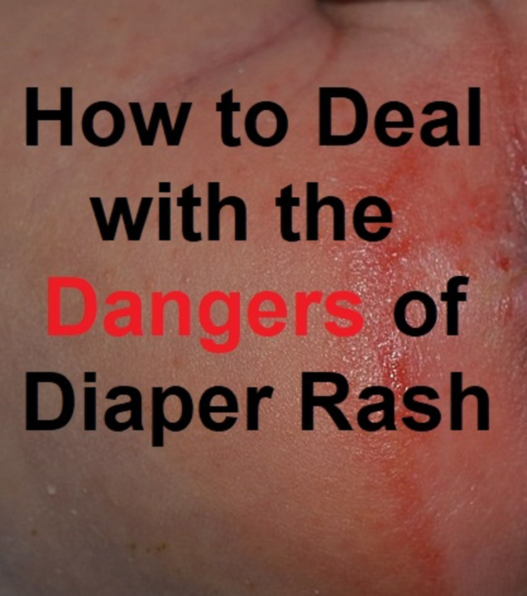 Most times diaper rash is uncomfortable for your baby but doesn't represent a risk to her health. However, it can be a sign of more serious conditions which parents should know about