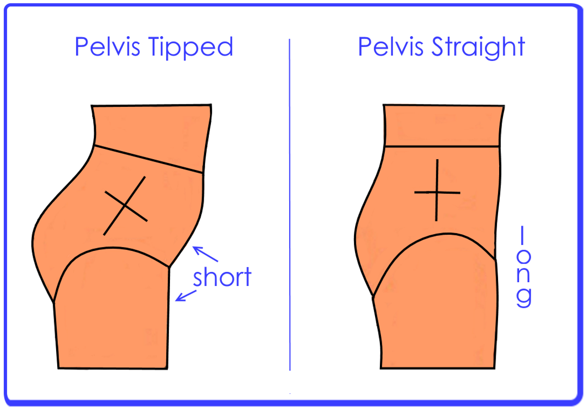 Incorrect and correct alignment of the pelvis.