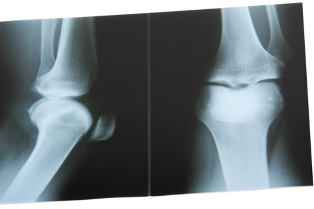Lupus patients often have joint pain in the knees.