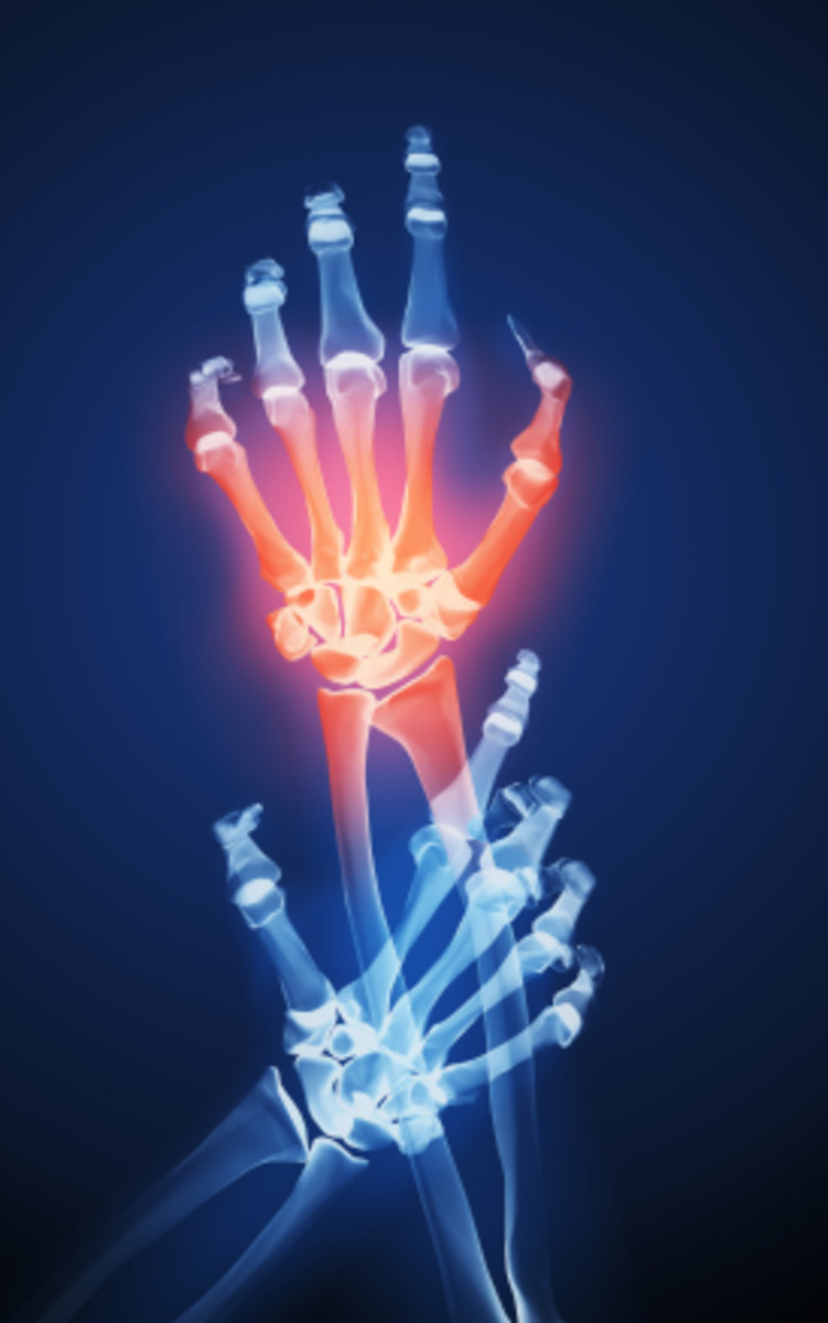 Hand and wrist joint pain is also common in Lupus patients.