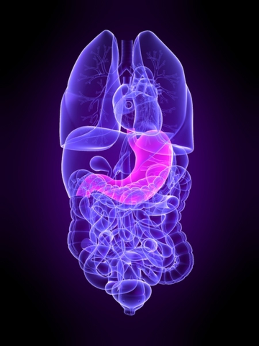 Irritable Bowel Disease and Celiac Disease often afflict Lupus patients.