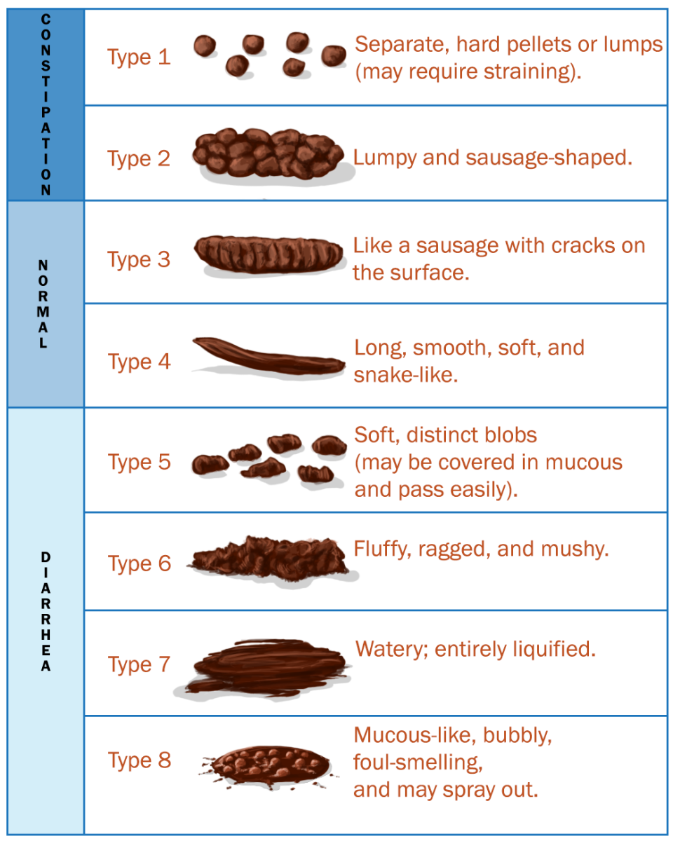 Modified Bristol Stool Chart: Type 8 Is an Addition
