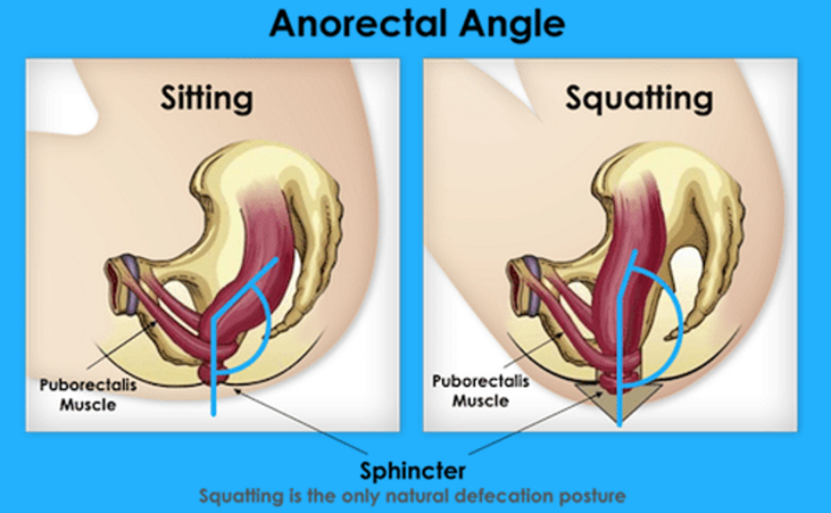 The blue line shows how the squatting position helps gravity during the process of elimination.