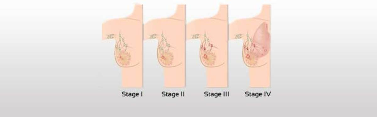 Breast Cancer Stages shown in diagram from I through IV