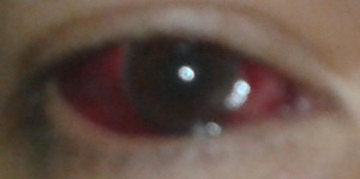 What Causes Broken Or Burst Blood Vessels In The Eyes