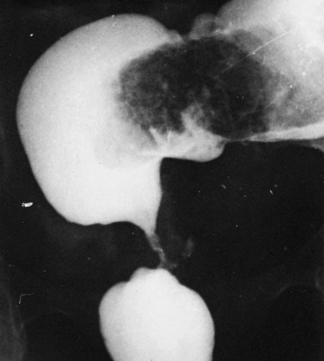 Stricture of the large bowel