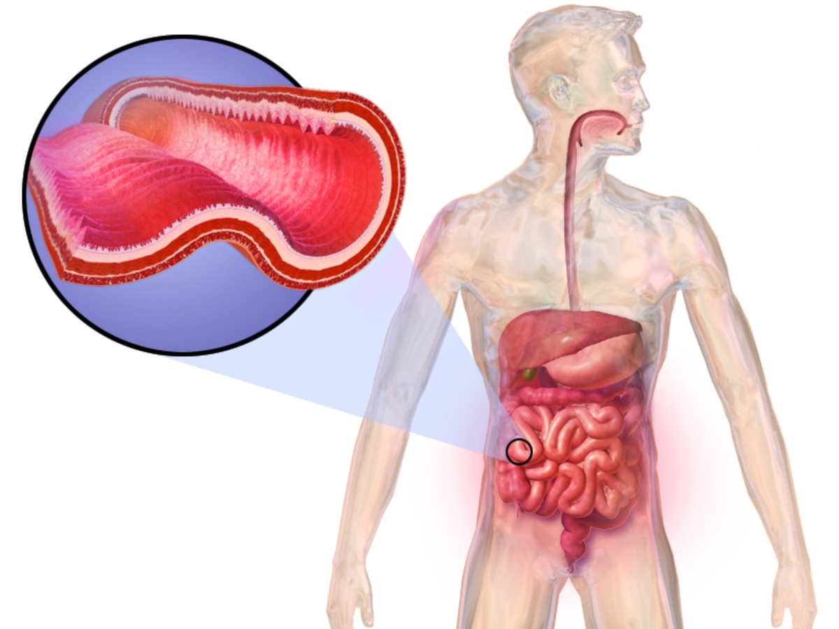 who-is-most-susceptible-to-having-crohns-or-ulcerative-colitis