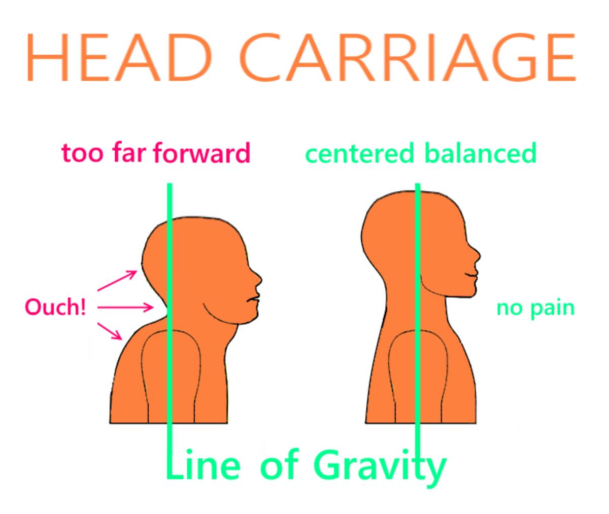 how-to-treat-a-stiff-neck