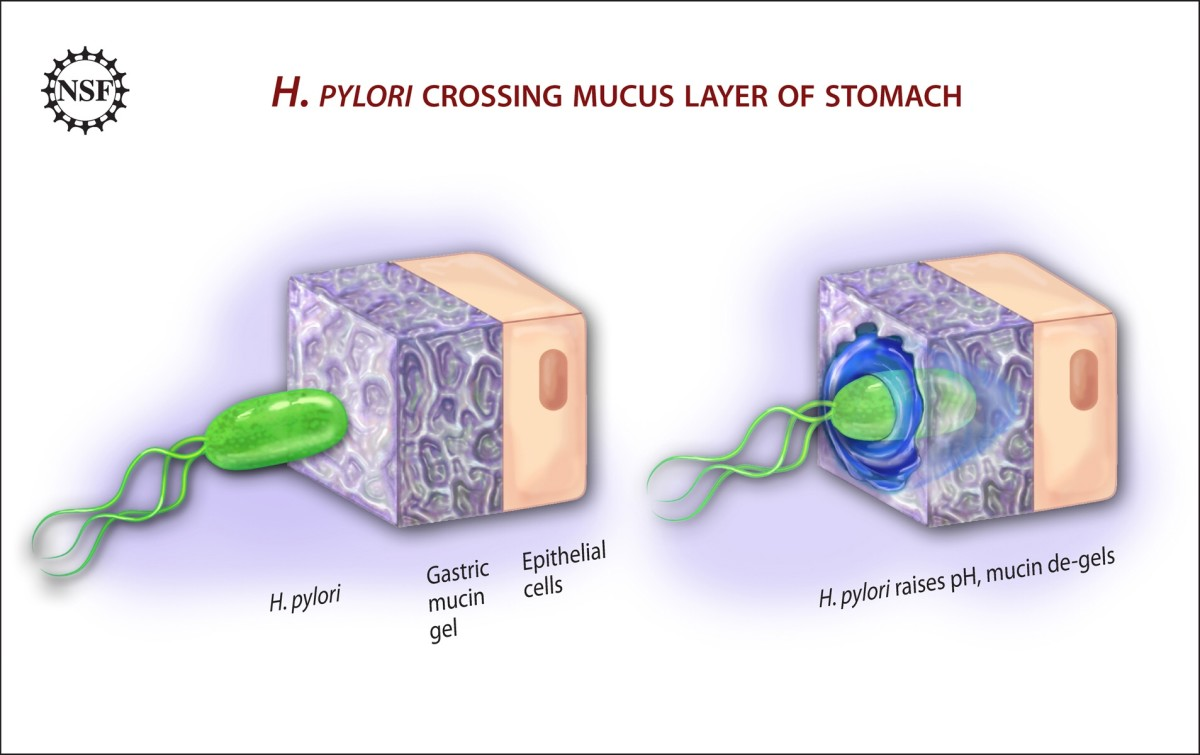 H. pylori penetrating the mucus covering the stomach lining
