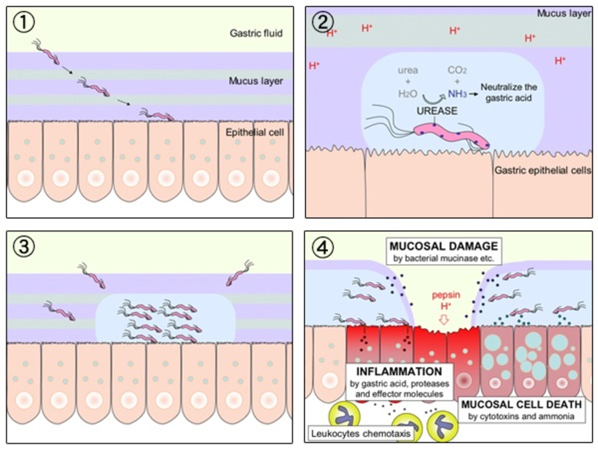 The process of gastric ulceration by H. pylori