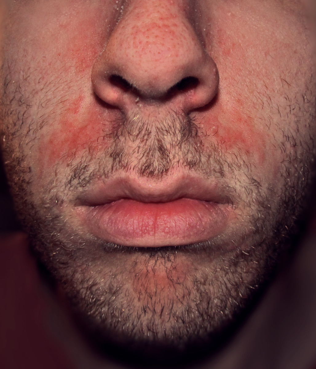 Itchy, flaking, greasy, red, and inflamed skin commonly occurs on the face, at the corners of the nostrils.