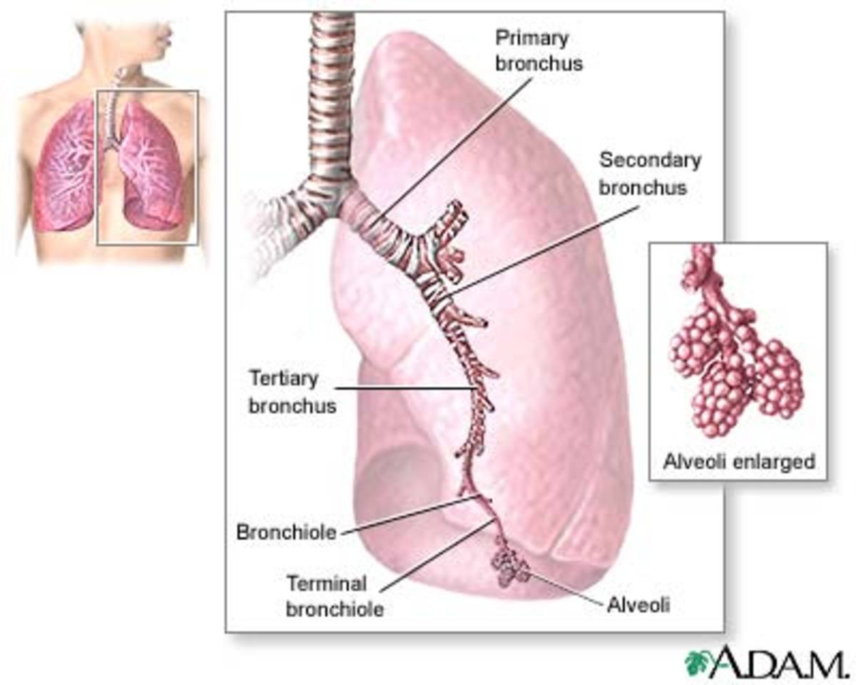 Bronchiectasis irreversible lung disease healdove diseased lungs ccuart Images